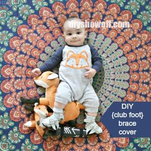 DIY Club Foot Brace Cover at diyshowoff